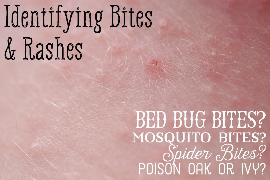 Mosquito Versus Bed Bug Bites