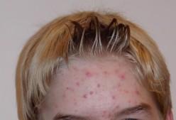 Externally Induced Acne