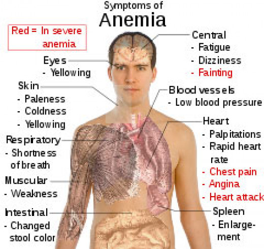 Vegan, vegetarians and meat eaters can all suffer from anemia.