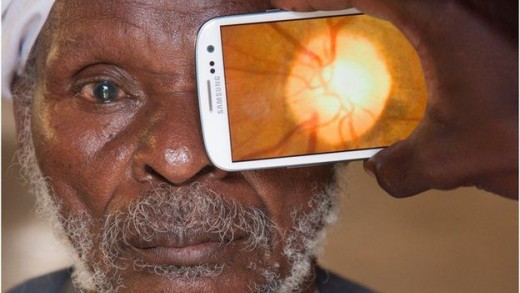 An attachment to a smartphone can use the flash to take pictures at the back of the eye to check for diseases and health of the retina