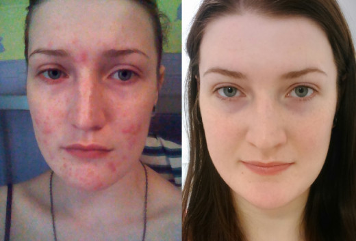 My six month progress with hormonal acne.
