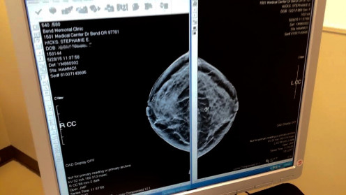 Breast mammogram for detecting breast cancer