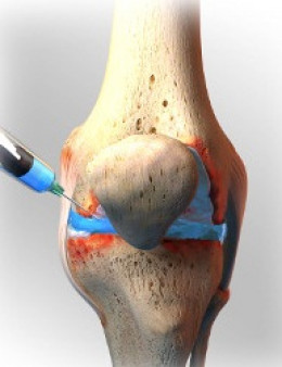 PRP injection being given in the knee