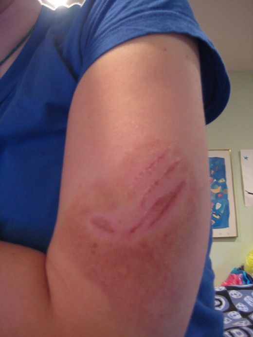 Dog Bites on Arm How to Treat a Dog Bite