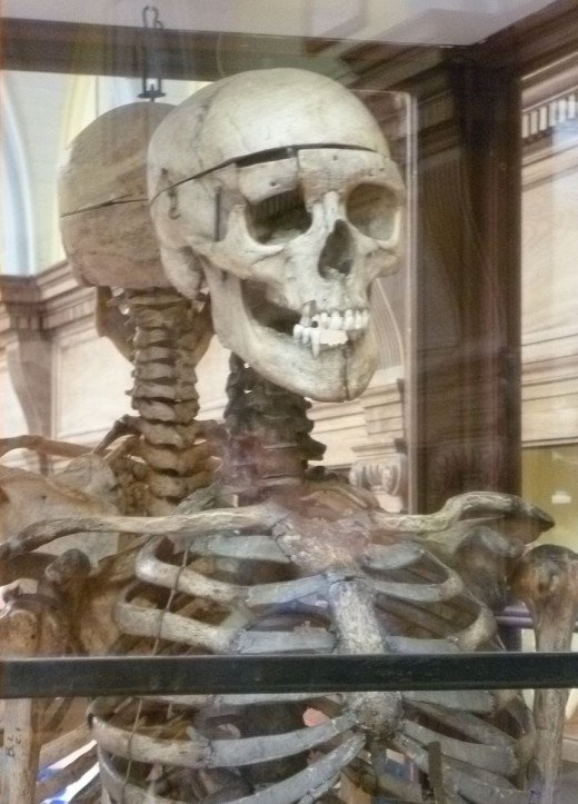 Skeleton of William Burke in the Anatomy Museum of the Edinburgh Medical School