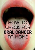 How To Self Check For Oral Cancer