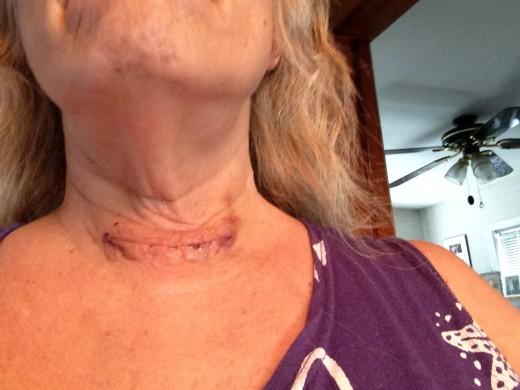 A week after surgery