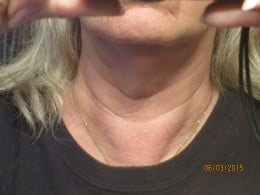 "Prior to surgery I had a ""lump"" called a goiter."