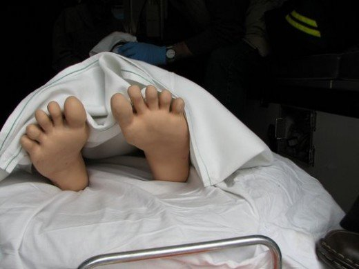 """""""Richard's"""" feet. Image from personal collection."""