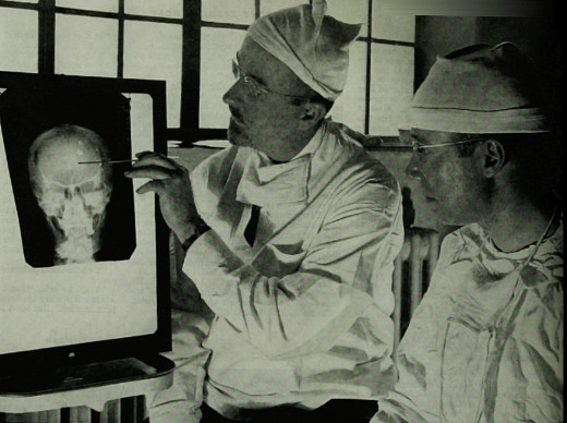 Doctors study an X-ray before a psychosurgical operation (1941)