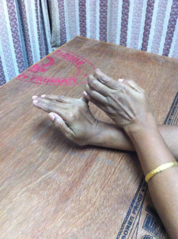 Dupuytren's Contracture - Physiotherapy- Home Management ...