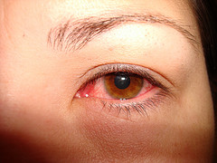 "Red puffy eyes are a common sign of ""pink eye"""