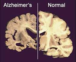 Image detailing the visual difference between a normal, healthy brain and one with advanced Alheimer's