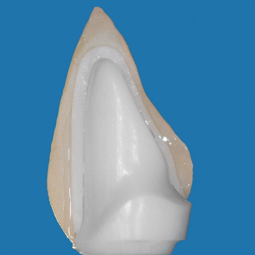 Depicted: a piece of zirconium dioxide, the material used in the creation of ceramic knives.