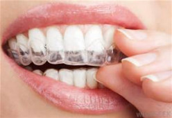 What do you think is the best whiteners for teeth?
