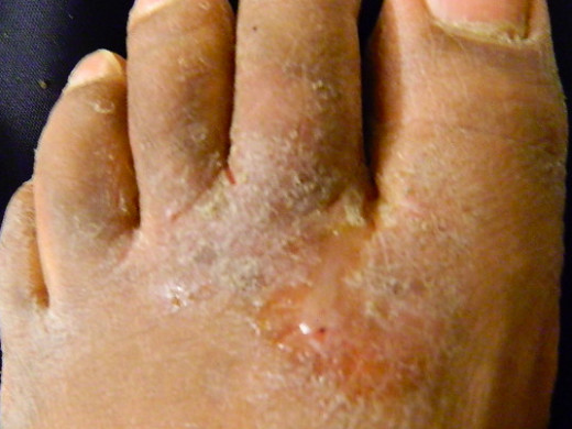 Untreated athlete's foot can cause blisters