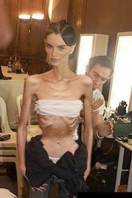 skinny model 2