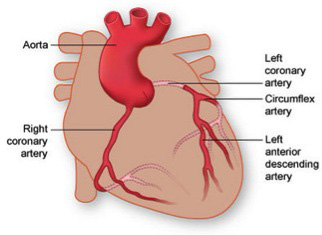 An occlusion at the top of the LAD shuts down the entire artery and will not only stop blood flow to the front, main wall of the heart, but it can reduce and/or block blood flow to the Circumflex which supplies blood to the left wall of the heart.