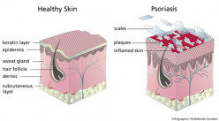 Living & Dealing with - Psoriasis