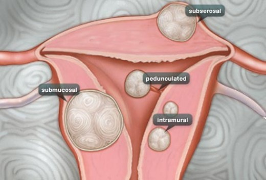 Types of Fibroids