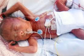 Preemie Born at 24 Weeks
