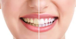 Teeth whitening is another realm of making a more beautiful smile. Before and after pictures are astonishing.