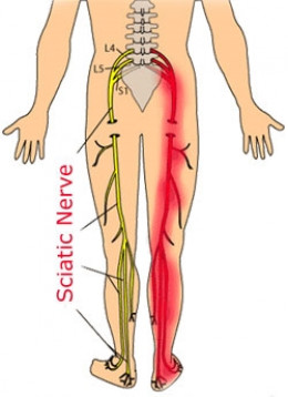 Sciatica: Lower back pain radiating down a leg