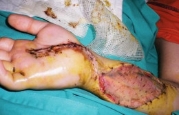 Showing horrendous and life-altering necrosis resulting from Puff Adder bite.
