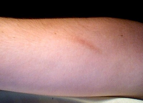A minor scar one year after the injury that caused it. Most scars fade with time.