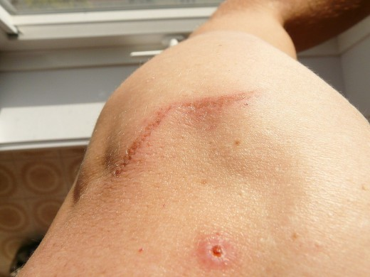 A scar on the shoulder and upper arm