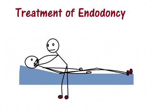 Treatment of Endodoncy
