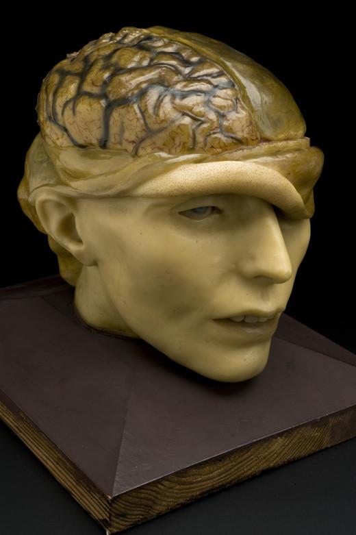 Wax anatomical model of human head, Europe.