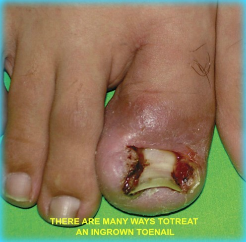 Ingrown Toenail Treatments Can Vary Significantly