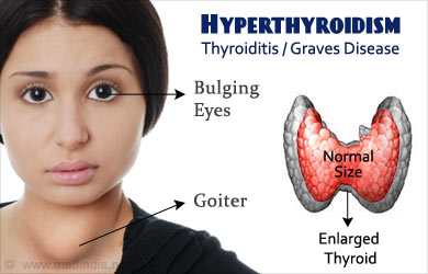 Description of what happens during and Overactive Thyroid