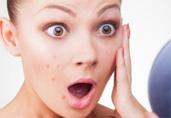 8 Simple Ways to Prevent Acne