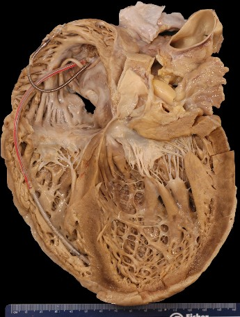 Inside the heart - Anatomy