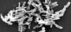C. Difficile  -  Is This Bacteria Killing You?