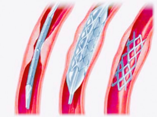 Stent Placement in a Plaque filled Coronary artery.
