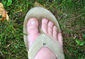 How to Care for an Ingrown Toenail (Until You Can Get Help)