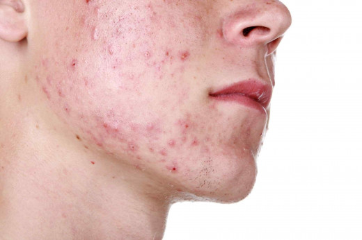 Acne on face