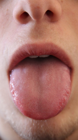 Our tongue shows our health
