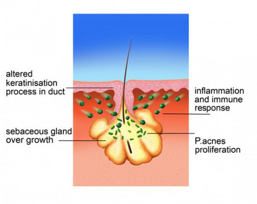 Gland located  next to hair follicle