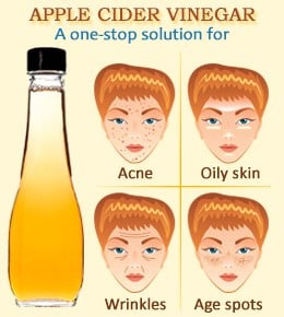 Apple Cider Vinegar Treatments For Acne Free Skin Bellatory