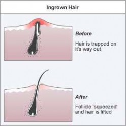 Ingrown Hair Treatments; How to prevent Ingrown Hairs in Bikini Lines, Beards, and Genital Areas