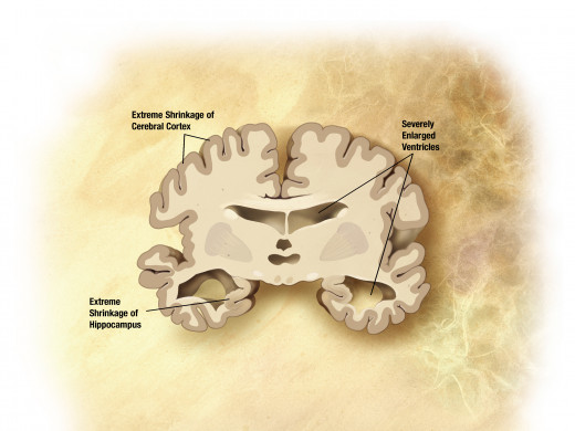 The brain of a person with Alzheimer's.