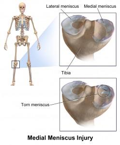 How to Self Diagnose a Meniscus Tear