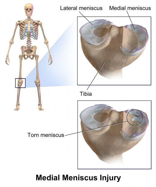 Example of Meniscus Tear