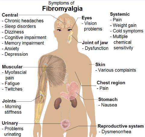 Symptoms of Fibromyalgia Infographic