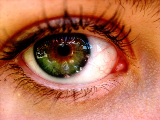 An eye is comprised of over 2 million working parts, thus a whole eyeball cannot be transplanted. Only one-sixth of the eyeball is exposed. About 80% of vision problems worldwide are preventable or curable.
