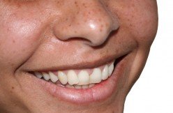 Can You Heal Cavities Naturally A Nutrient Dense Diet?- Day 1